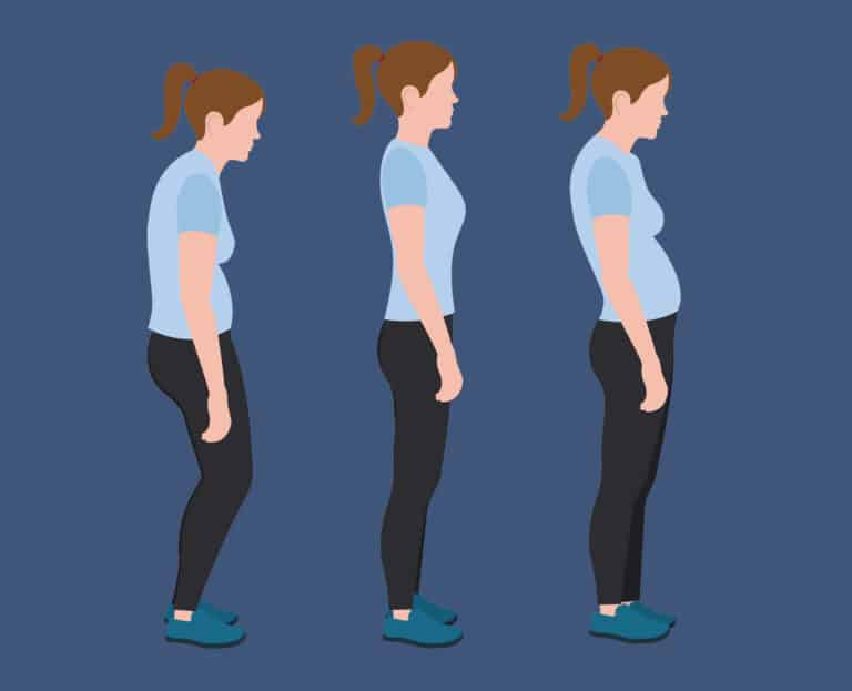 Få en bedre kropsholdning - Kvinde med dårlig positur.